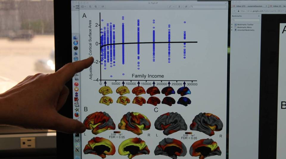 Elizabeth Sowell, a neuroscientist at Children's Hospital in Los Angeles, points to a chart comparing family income and brain surface area.