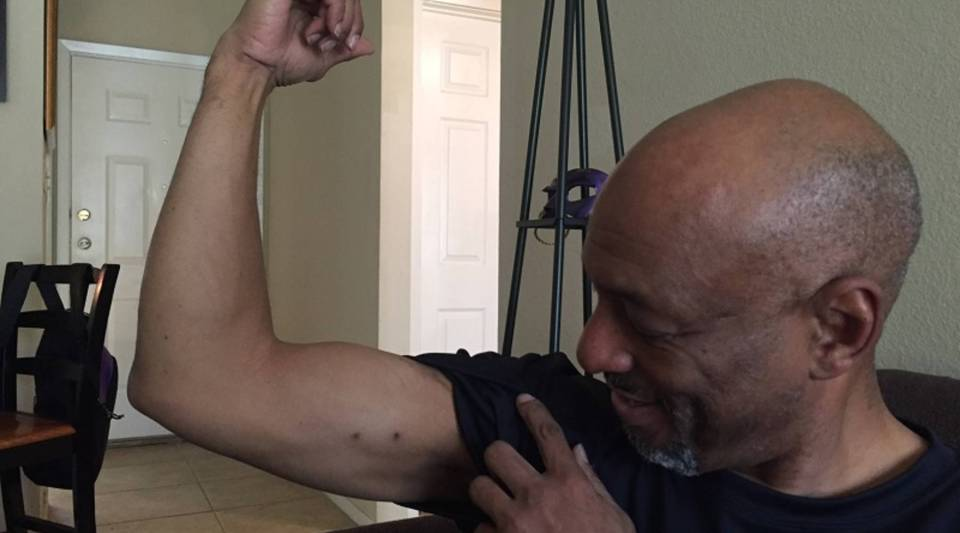 Warren J. Smith holds up his arm to show where he had an IV to administer antibiotics.