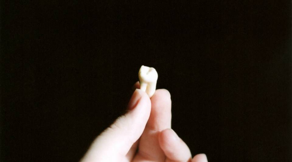 In the U.S., 10 million wisdom teeth are extracted every year.